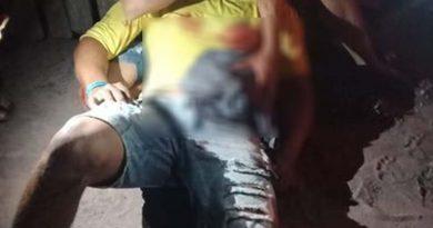 Jovem é esfaqueado nas costas e barriga no bairro Bela Vista do Juá